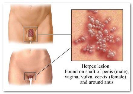 genital herpes eradication