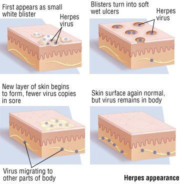 stages of herpes