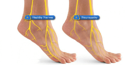 how to get rid of neuropathy
