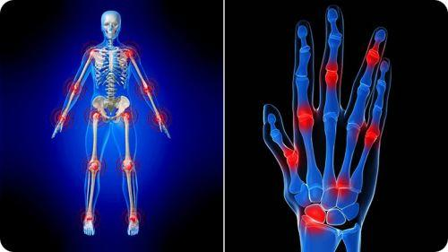 arthritis home remedies for legs